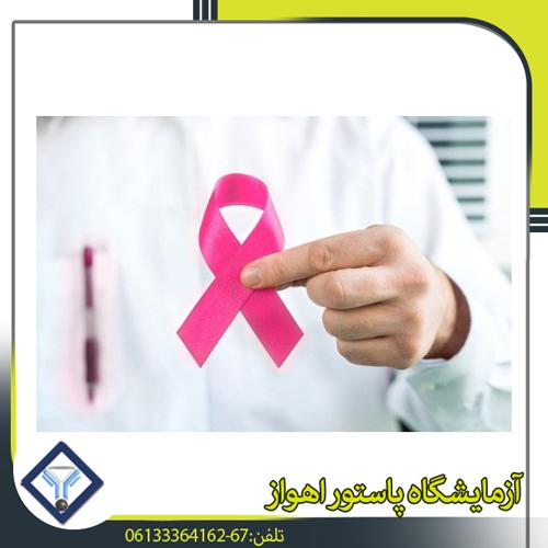 امکان پیش بینی نتیجه سرطان پستان با محصولات جانبی استروژن