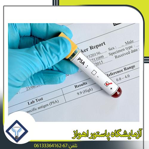 تست تشخیص سرطان پروستات