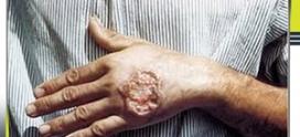 درمان بیماری سالک