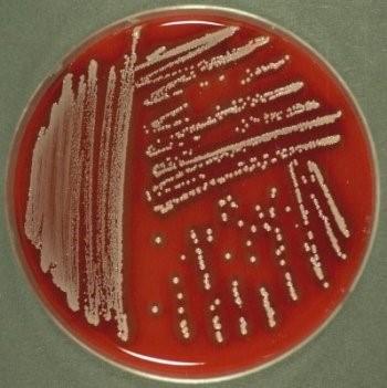 اثر کشنده پروبیوتیک ها بر باکتری های مقاوم به آنتی بیوتیک!