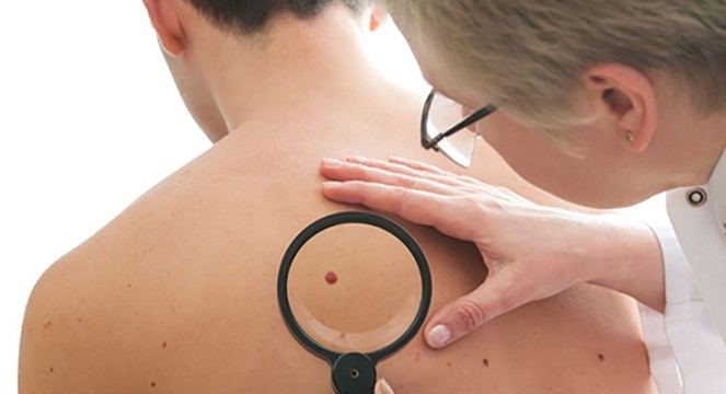 توقعات اصطیاد به سرطان بواسطه سرطان الجلد