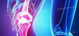 درمان استئوآرتریت با روش PRP) Platelet-Rich Plasma)