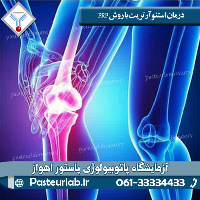 درمان استئوآرتریت با روش PRP
