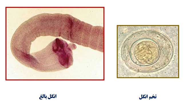 هیمنولیپس نانا (Hymenolepis nana)