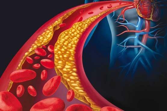 نقش کلسترول در بیماری آلزایمر
