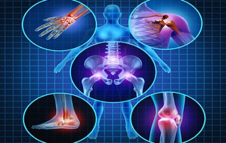 درمان استئوآرتریت با ارتوکین (Orthokine)