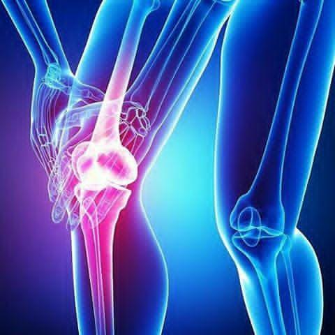درمان استئوآرتریت با روش PRP (Platelet-Rich Plasma)