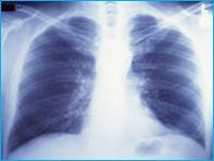 آسم و بیماری انسدادی ریه (COPD)