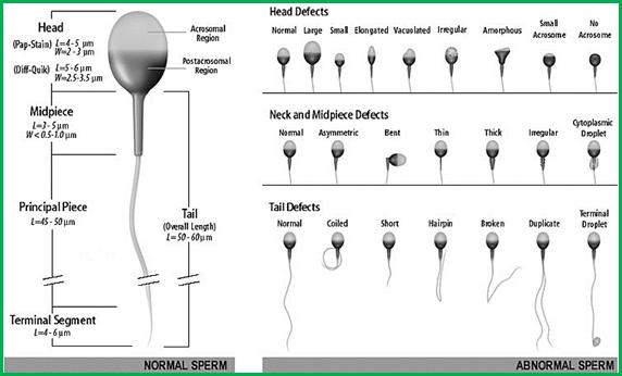 اختلالات مربوط به اسپرم