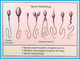 اختلال اوليگواسپرمي