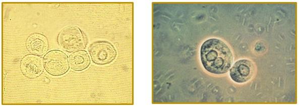 سلولهای اپی تلیال توبولهای کلیوی