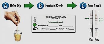 تشخیص بیماری مالاریا